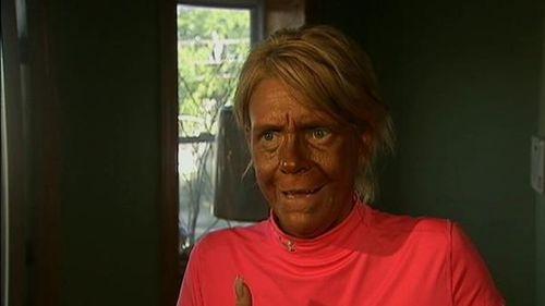 Tanning%20Lady